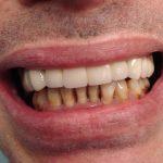 Възстановяване на обеззъбени челюсти Случай 2 (1)