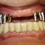 Възстановяване на обеззъбени челюсти Случай 4 (1)