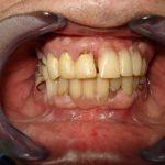 Цялостна рехабилитация на горна и долна челюст Случай 1 (1)