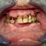 Цялостна рехабилитация на горна и долна челюст Случай 2 (1)