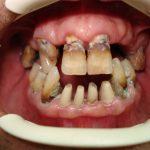 Цялостна рехабилитация на горна и долна челюст Случай 3 (1)