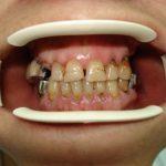 Цялостна рехабилитация на горна и долна челюст Случай 4 (1)