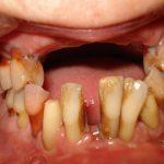 Цялостна рехабилитация на горна и долна челюст Случай 5 (1)