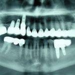 Възстановяване на обеззъбени челюсти Случай 3 (10)