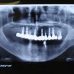Възстановяване на обеззъбени челюсти Случай 1 (10)