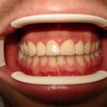 Цялостна рехабилитация на горна и долна челюст Случай 3 (2)