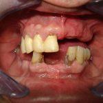 Цялостна рехабилитация на горна и долна челюст Случай 1 (2)
