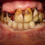 Цялостна рехабилитация на горна и долна челюст Случай 2 (2)