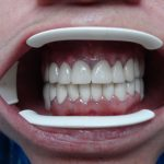 Цялостна рехабилитация на горна и долна челюст Случай 4 (2)