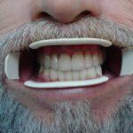 Цялостна рехабилитация на горна и долна челюст Случай 2 (3)
