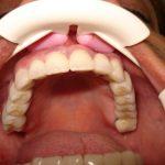 Цялостна рехабилитация на горна и долна челюст Случай 1 (4)