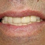 Цялостна рехабилитация на горна и долна челюст Случай 3 (4)