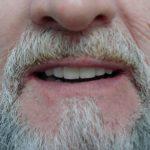 Цялостна рехабилитация на горна и долна челюст Случай 2 (5)