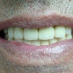 Цялостна рехабилитация на горна и долна челюст Случай 3 (5)