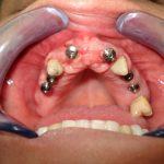 Възстановяване на обеззъбени челюсти Случай 1 (5)