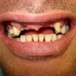 Възстановяване на обеззъбени челюсти Случай 2 (5)