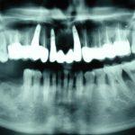 Възстановяване на обеззъбени челюсти Случай 2 (6)