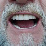 Цялостна рехабилитация на горна и долна челюст Случай 2 (6)