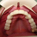 Възстановяване на обеззъбени челюсти Случай 1 (8)